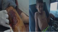 Suud Rejimi Yemen Halkını Katletmeye Devam Ediyor