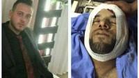 Siyonistler Kalendiya'da 2 Genci Şehit Etti Onlarcasını Yaraladı