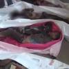 BM: Suud Hava Saldırılarında 1316 Yemenli çocuk 2017'de malul kaldı