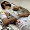 Dera'da Yaralanan 4 Terörist Ürdün Hastanelerinde Öldü