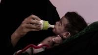 BM: 'Yemen'de 18 milyon kişi açlık tehlikesi altında'