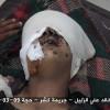 Suud Güçleri Yemende Kadın Ve Çocukları Hedef Aldı: 22 Ölü