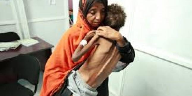 Dünya'nın Suud Cinayetleri Karşısındaki Sessizliği Yemenli Çocukların Açlık Krizinden Dolayı Tedrici Ölümleri Hızlandırıyor